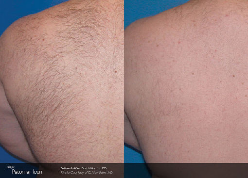 Hair-Removal-Before-After