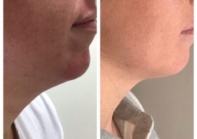 Coolsculpting Chin Area Before and After