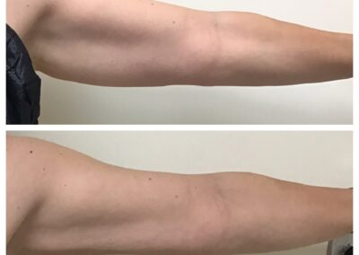 Coolsculpting Arm Area Before and After