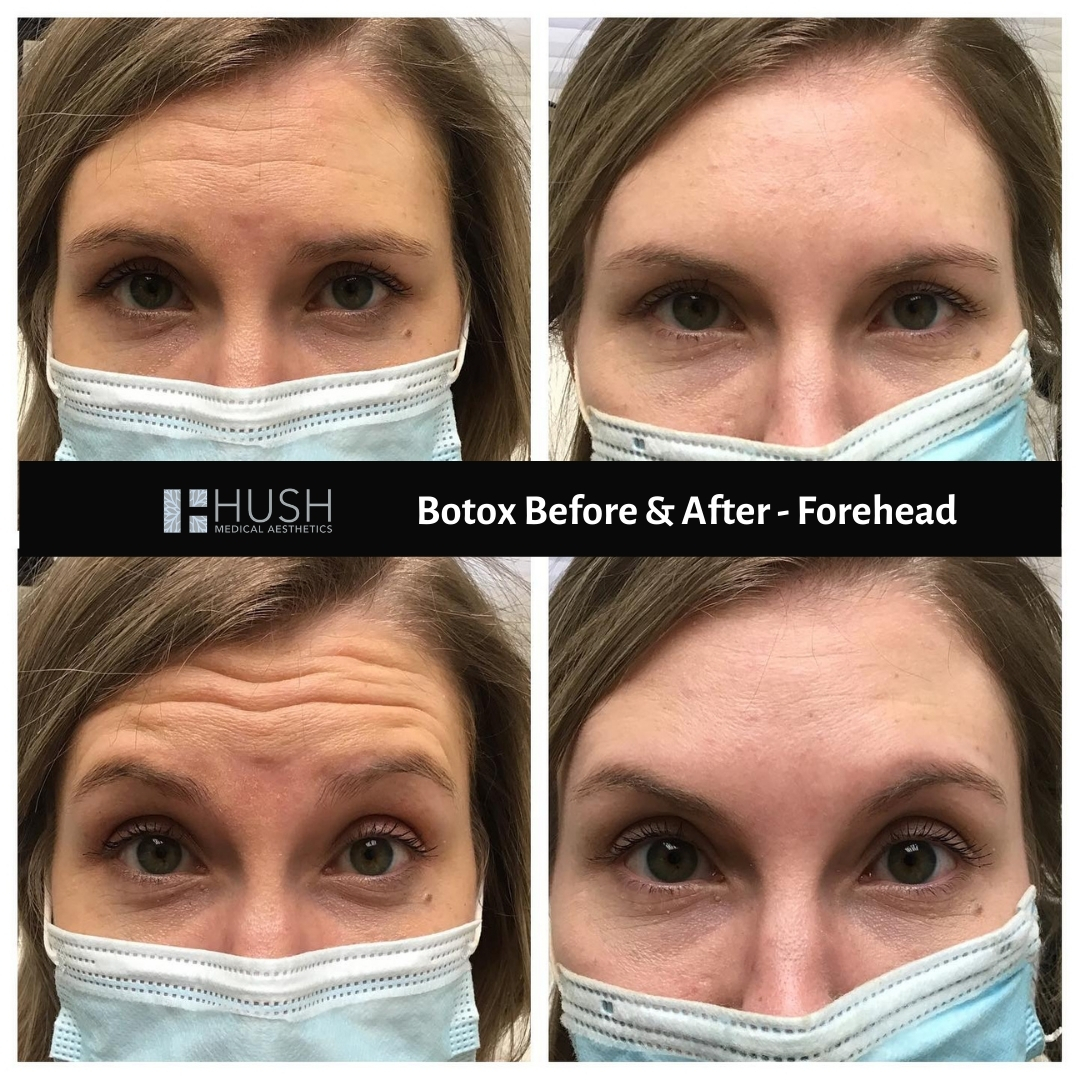 Botox Before & After Forehead